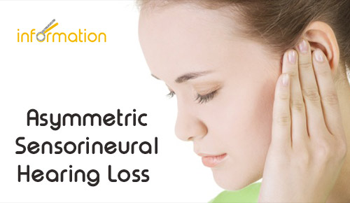 Asymmetric Sensorineural Hearing Loss